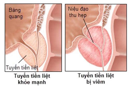 nguyen-nhan-viem-tuyen-tien-liet-1